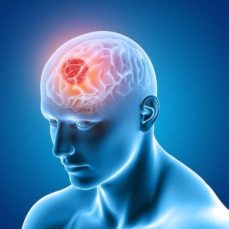1,557 Brain Tumor Stock Vector Illustration And Royalty Free Brain.