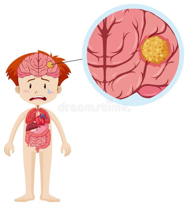 Brain Cancer Stock Illustrations.