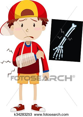 Sad boy with broken arm Clipart.