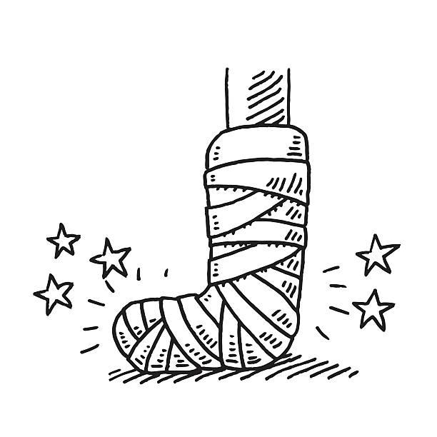 Best Broken Leg Illustrations, Royalty.