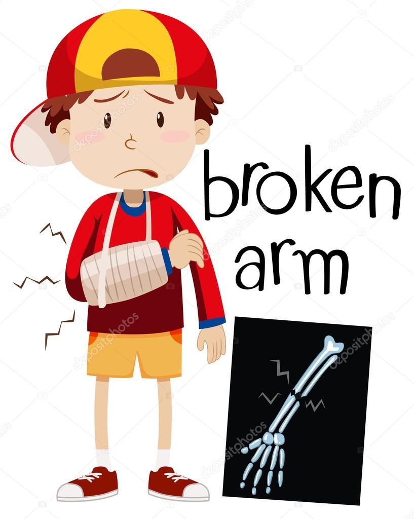 Clipart: broken bones.