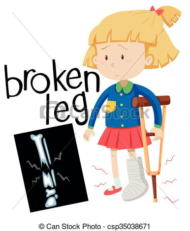 Girl with broken leg and x.