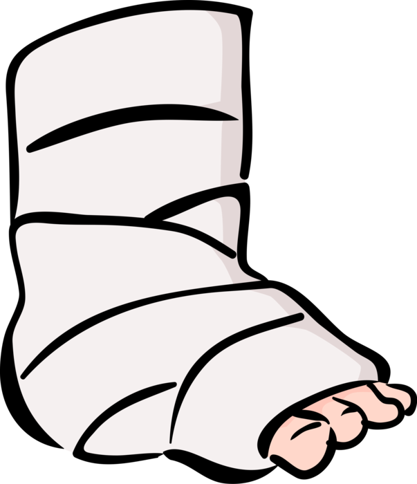 Leg clipart broken bone, Leg broken bone Transparent FREE.