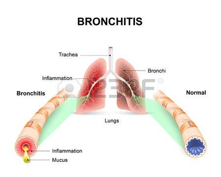 Bronchial Stock Vector Illustration And Royalty Free Bronchial Clipart.