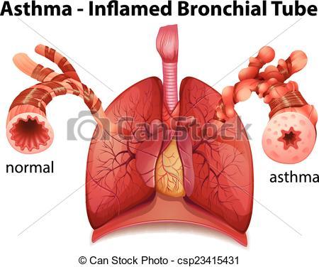 Bronchial asthma Clip Art Vector Graphics. 134 Bronchial asthma.