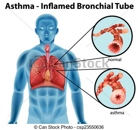 Vectors of Asthma.