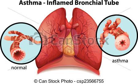 Bronchial Illustrations and Stock Art. 1,226 Bronchial.