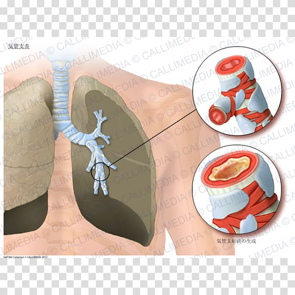 Acute bronchitis Asthma Lung Bronchiolitis Bronchus.