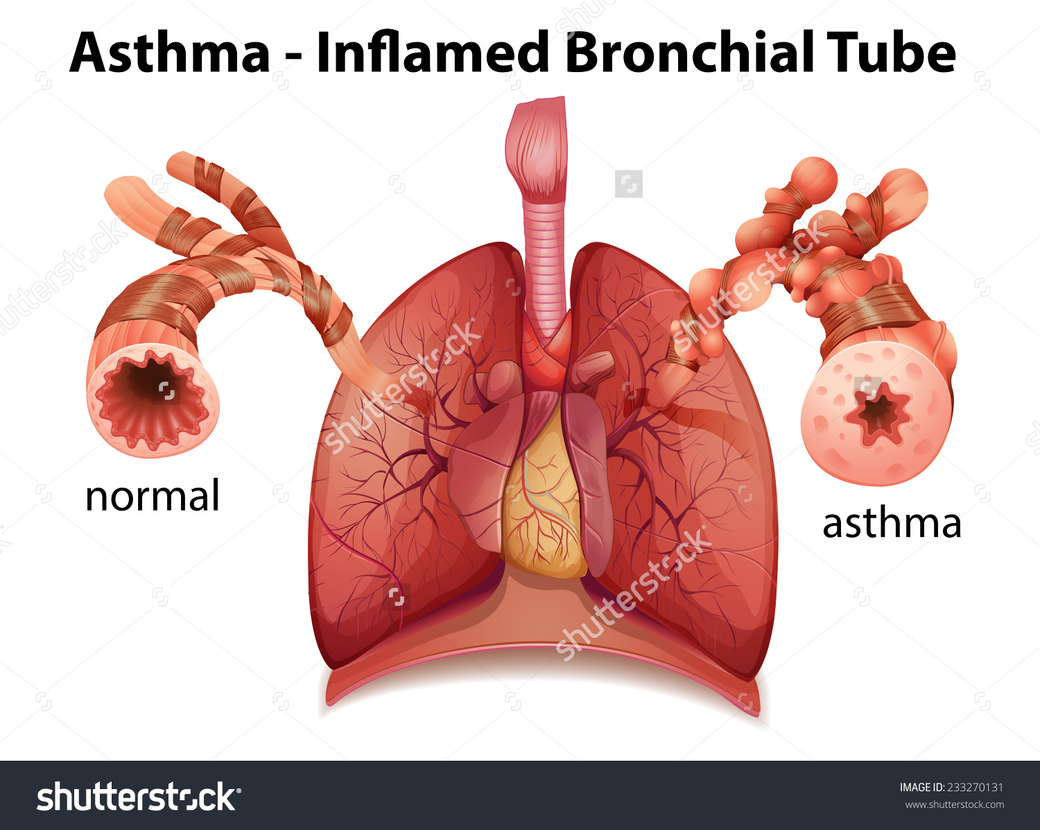 Image Showing Asthmainflamed Bronchial Tube On Stock Vector.