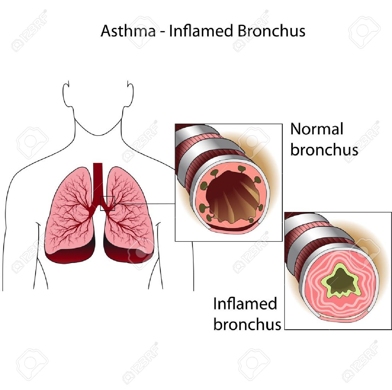 The Bronchial Tubes Of Healthy Person And A Person Suffering.
