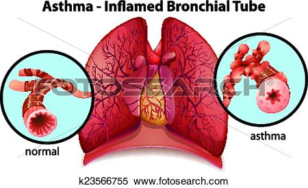 Clipart of An asthma.