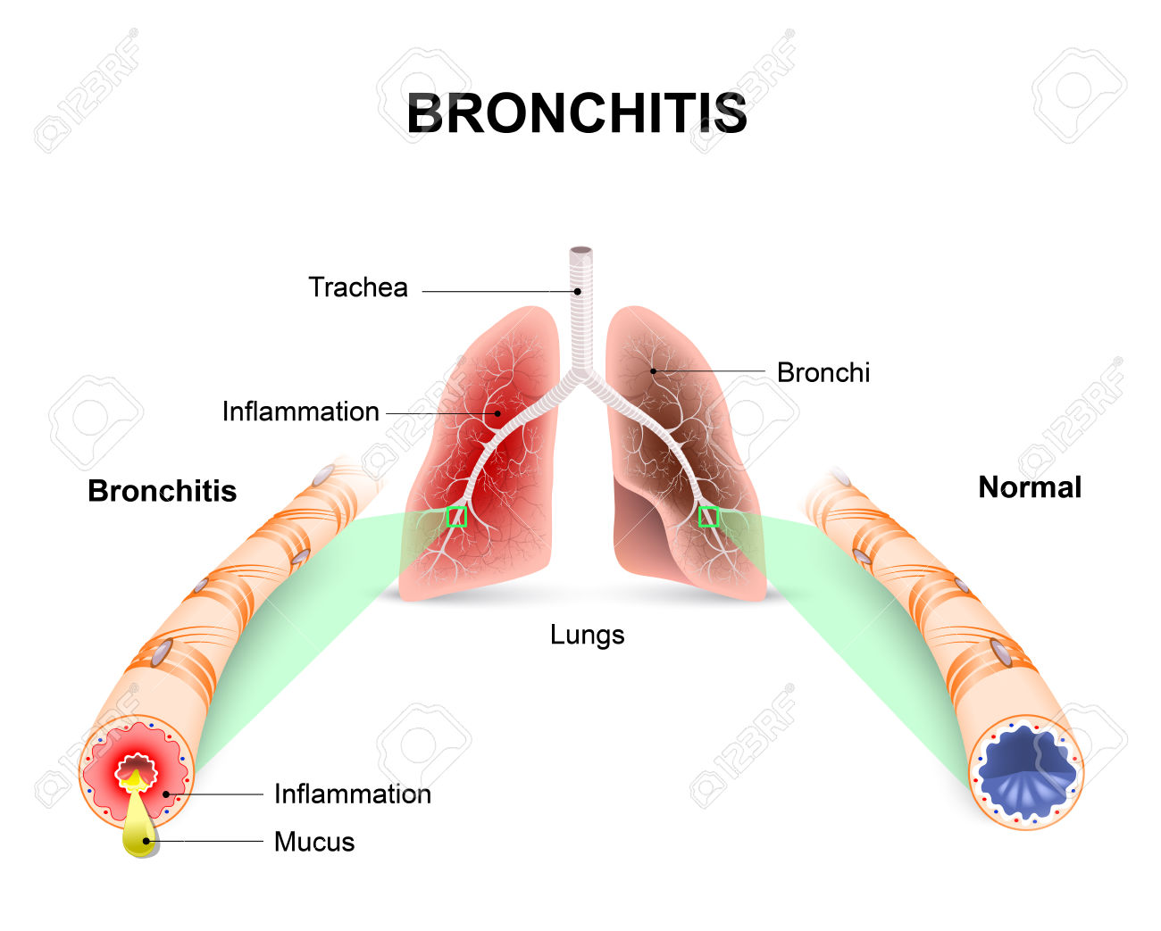 Bronchitis. Lungs And Bronchial Tubes. Normal Bronchial Tube.