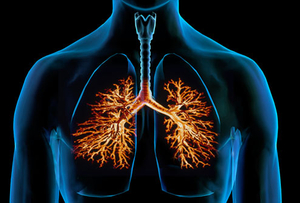 What Is Bronchitis? Acute and Chronic Causes, Picture, and Overview.