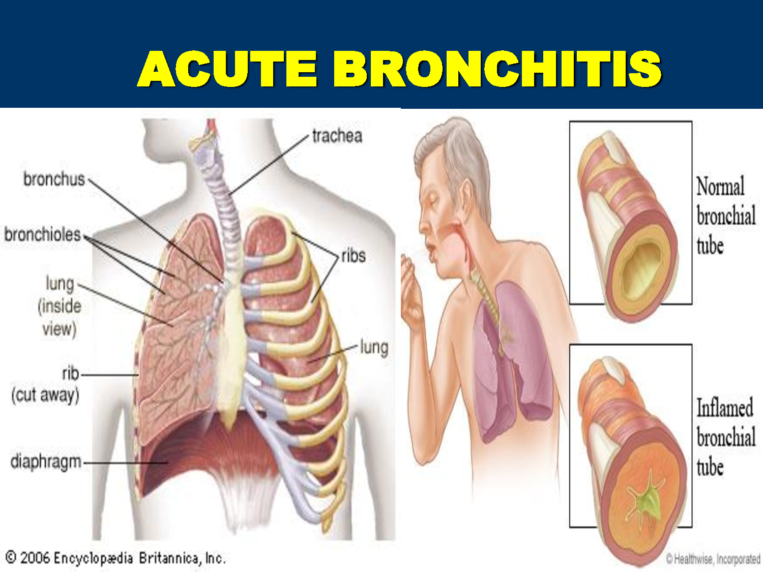 Acute Bronchitis FAQs.