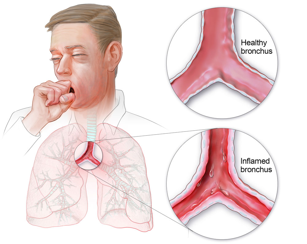Understanding Bronchitis: Symptoms, Causes, and Treatment.