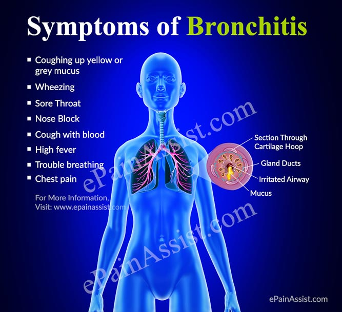 Bronchitis: How do You Get Bronchial Infection & What is its.