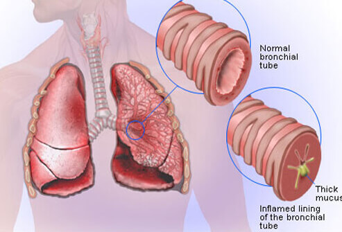 Bronchitis Symptoms and Treatments.