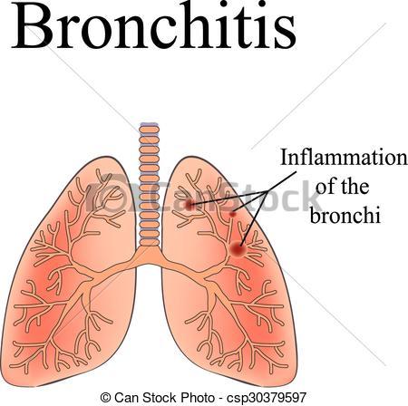 Bronchitis Clip Art Vector Graphics. 249 Bronchitis EPS clipart.