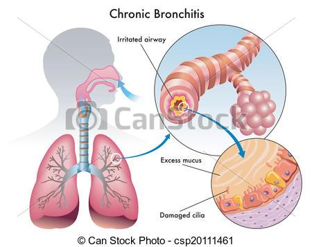 Clip Art Vector of Chronic Bronchitis.
