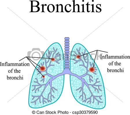 EPS Vectors of Bronchitis. The anatomical structure of the human.