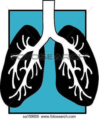 Stock Illustration of Graphic depiction of the bronchus and lungs.