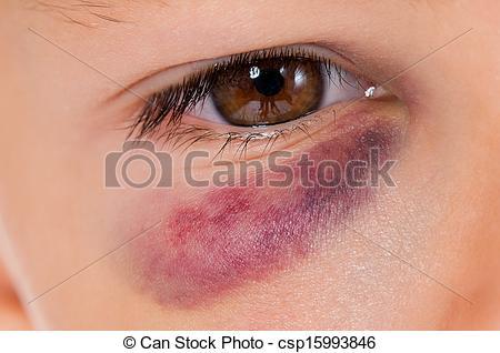 Bruise Clipart.