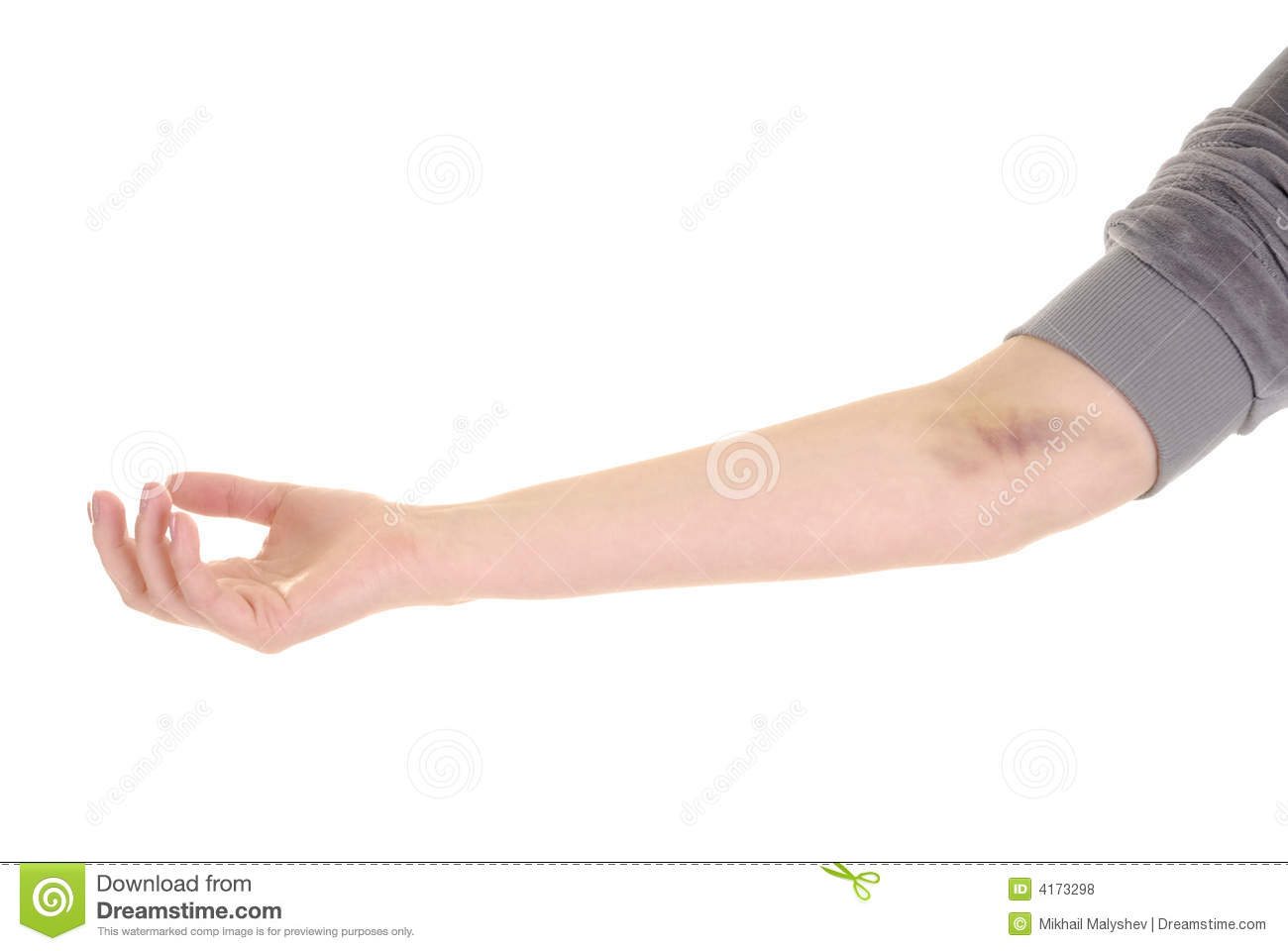 Hand With Bruise Royalty Free Stock Photos.