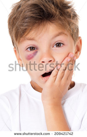 Portrait Boy Real Eye Bruise Isolated Stock Photo 214732219.