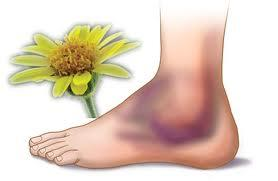 Free Bruise Cliparts, Download Free Clip Art, Free Clip Art.