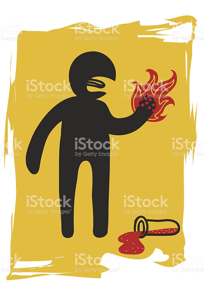 Burning The Hand With Corrosive Liquid stock vector art 187883623.