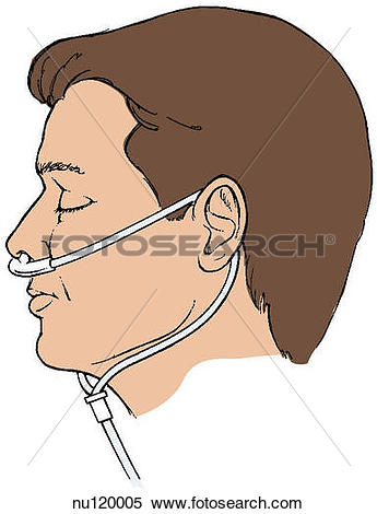 Stock Illustration of Illustration showing a patient wearing a.