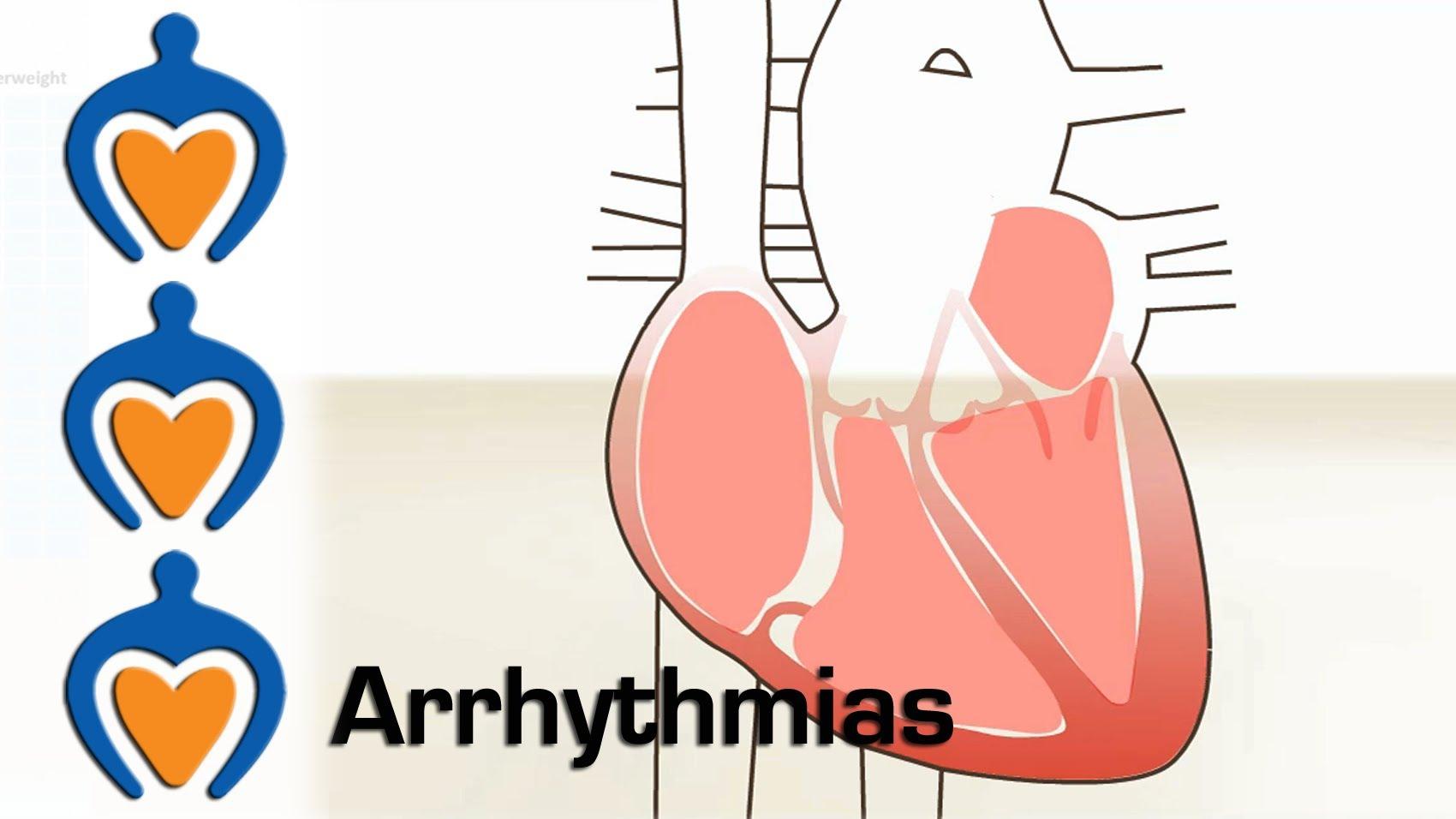 Arrhythmias.