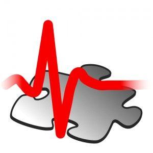 1000+ ideas about Cardiac Rhythms on Pinterest.