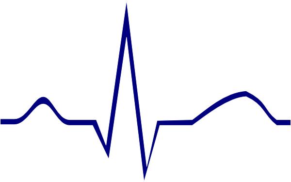Irregular Heart Rhythm Clip Art.