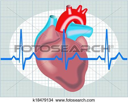 Clipart of Cardiac arrhythmia k18479134.