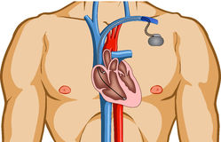 Pacemaker Stock Illustrations.