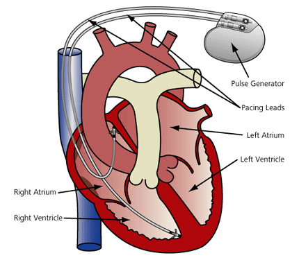 Arrhythmia Treatments.