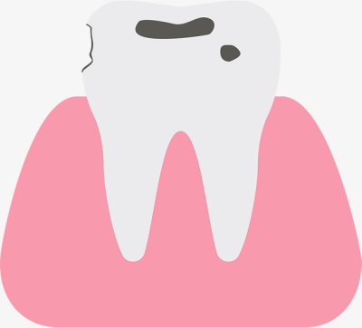 Caries PNG.