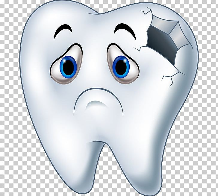 Tooth Decay Human Tooth Cartoon PNG, Clipart, Caries, Cartoon, Decay.