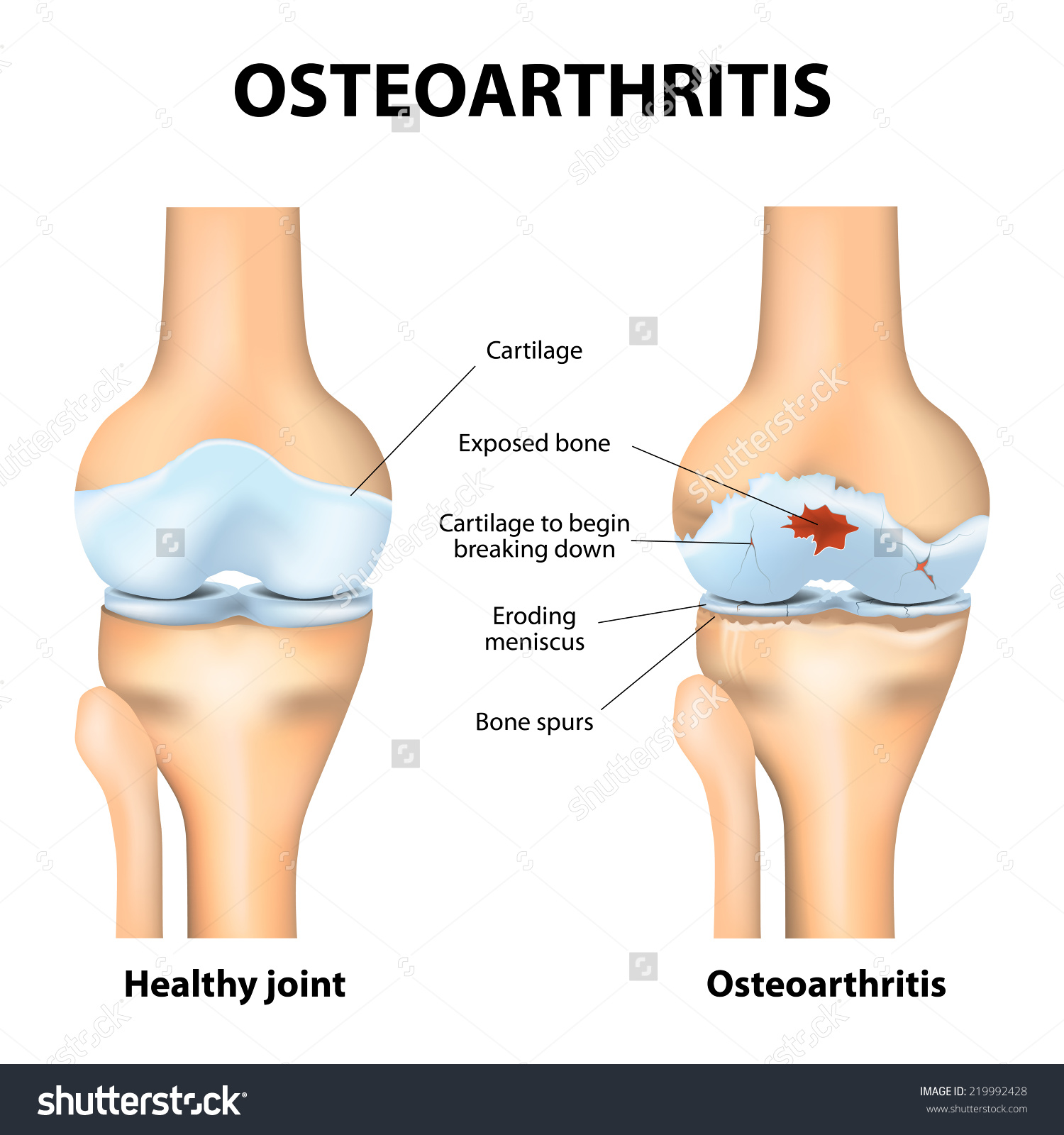 Osteoarthritis Arthritis Pain Within Joint Degenerative Stock.