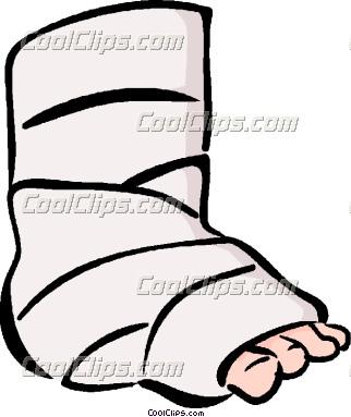 Leg in a cast clipart.