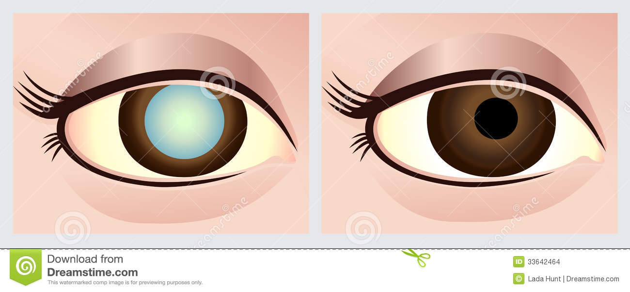 Cataract Stock Illustrations.