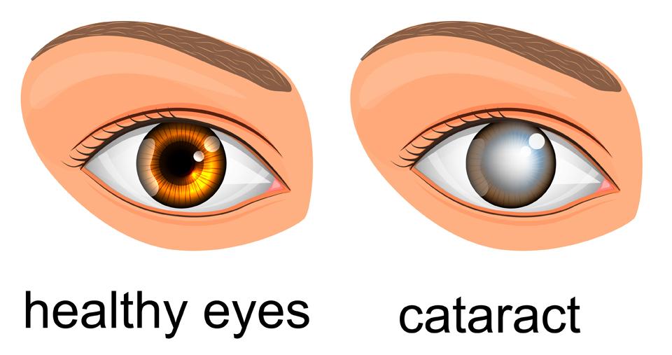 Cataracts.