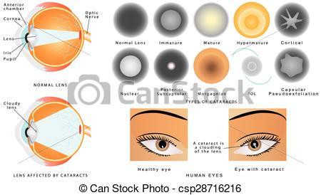 Cataract Clipart Vector Graphics. 95 Cataract EPS clip art vector.