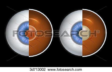 Clip Art of Cataract versus normal lens. 3d713002.