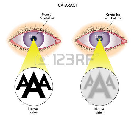 196 Cataract Stock Illustrations, Cliparts And Royalty Free.