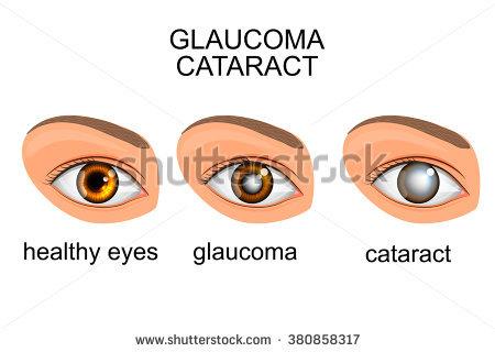 Cataract Surgery Stock Photos, Royalty.