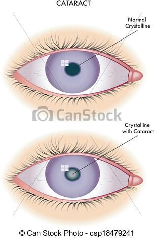 Cataract Clip Art.