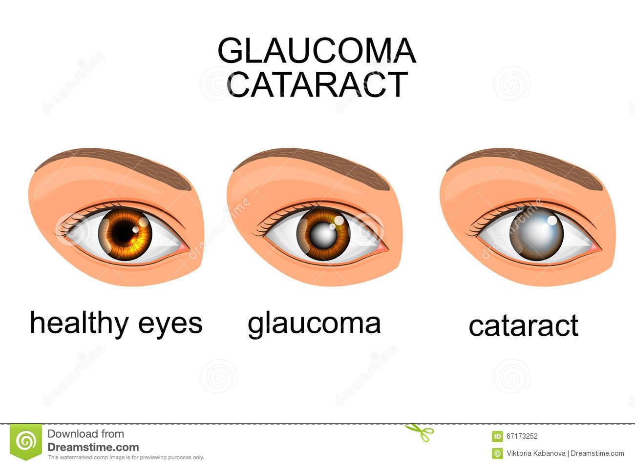 Cataract Eye Clip Art.