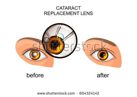 Cataract Surgery Stock Images, Royalty.